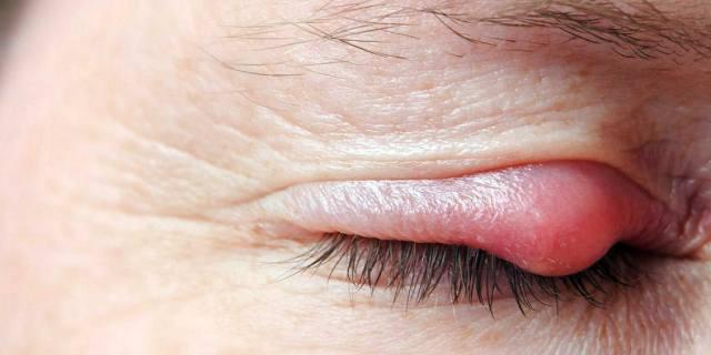 Ячмень на глазу - чем лечить в домашних условиях, лекарства