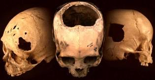 Фото: трепанация черепа в древности, интересные факты