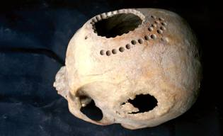Фото: древняя трепанация черепа — интересные факты