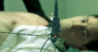 Фото: имплантаты пришельцев — интересные факты