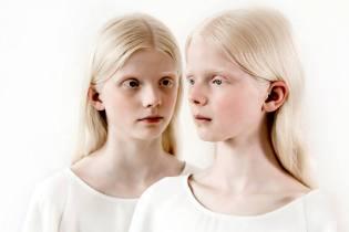 Фото: альбинизм — что это такое, интересные факты