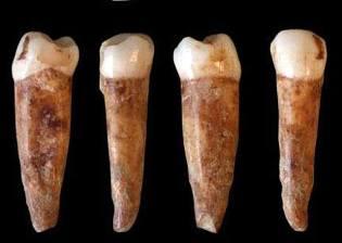 Фото: древние зубы Адама, интересные факты